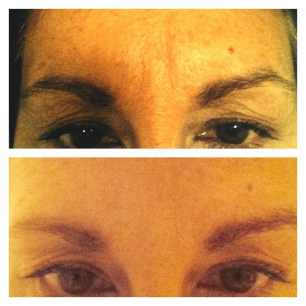 beforeafter brow