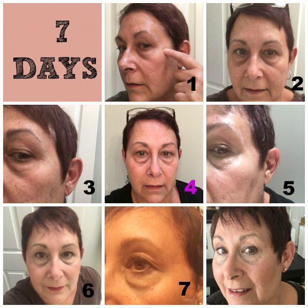 7 day wrinkle repair